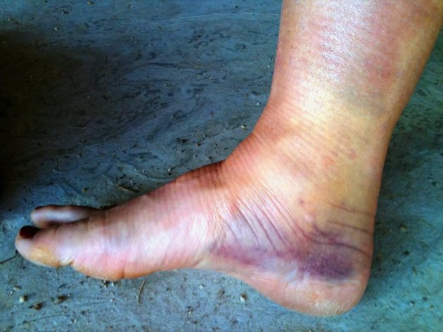 Jane Shadbolt's ankle 2011. Next time, she'll take the escalator.